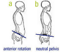 Donald Duck Syndrome (Anterior pelvic tilt) do you have it?